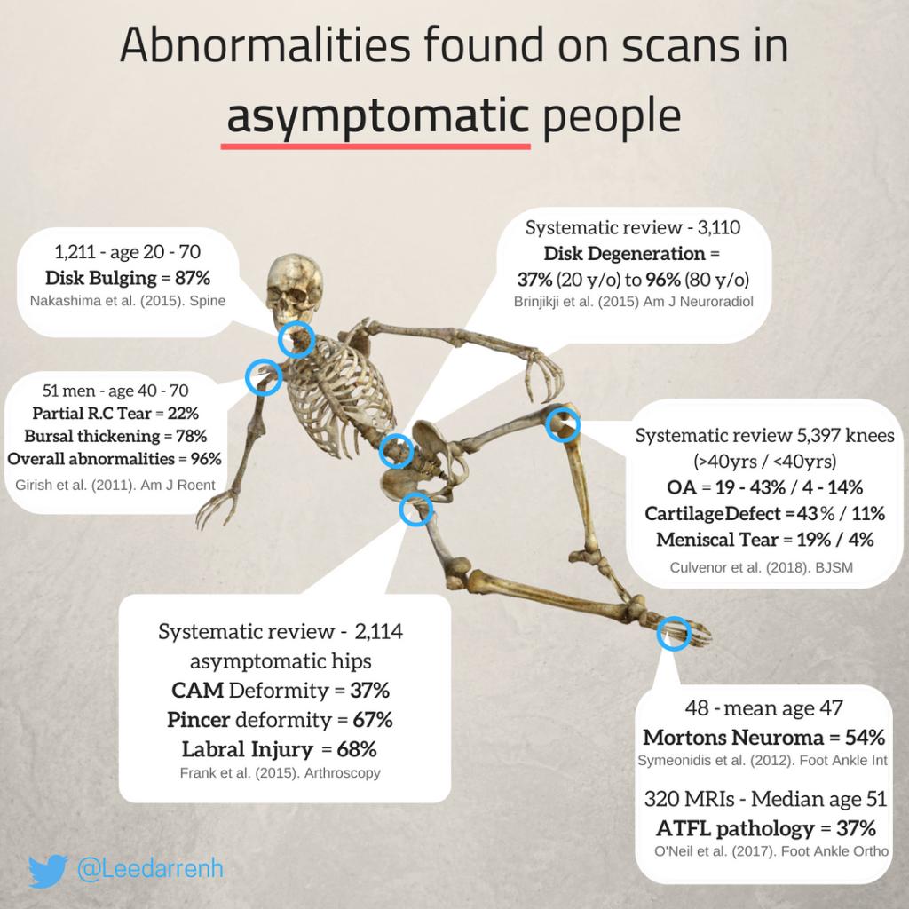Asymptomatic MRI Scan